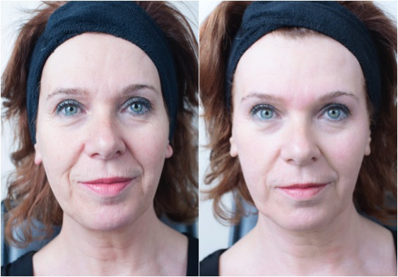 Get an Instant Glow with Crystal Clear Comcit at Revive ...