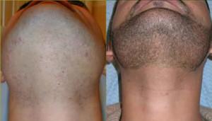 mens-beard